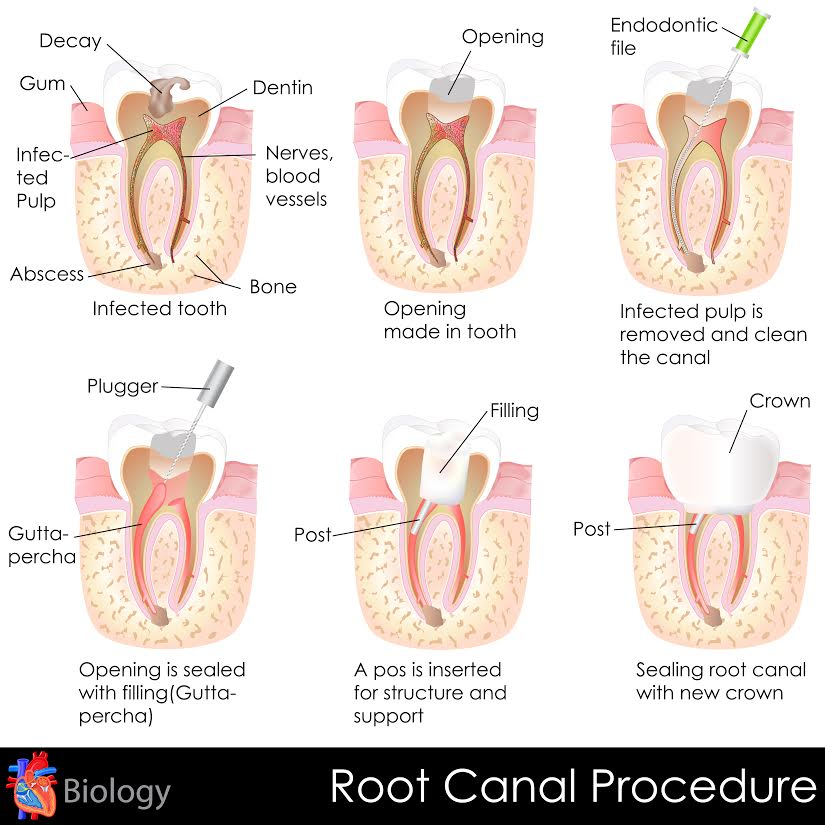 Myrtle Beach Root Canal Procedure